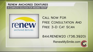 Renew Anchored Dentures - June 13, 2019
