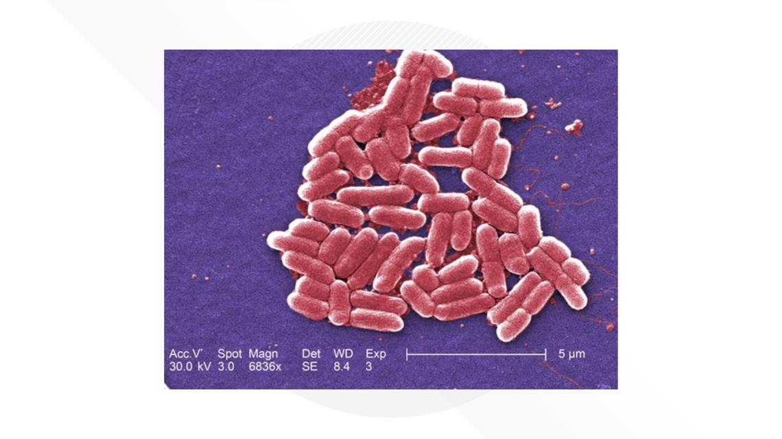 How do you know if you have E. coli?  Our medical expert breaks it down
