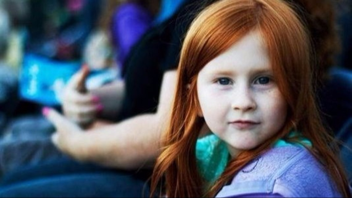 Redhead day is Nov  5! 9 fun facts about red hair | 9news com