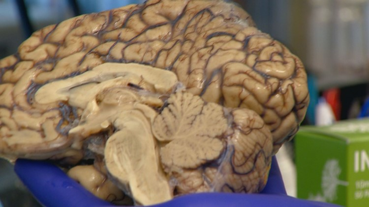 A decades old drug called Leukine could be the key to curing Alzheimer's disease.
