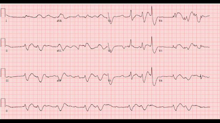 Repeat electrocardiogram showing disorganized rhythm, peri-arrest.