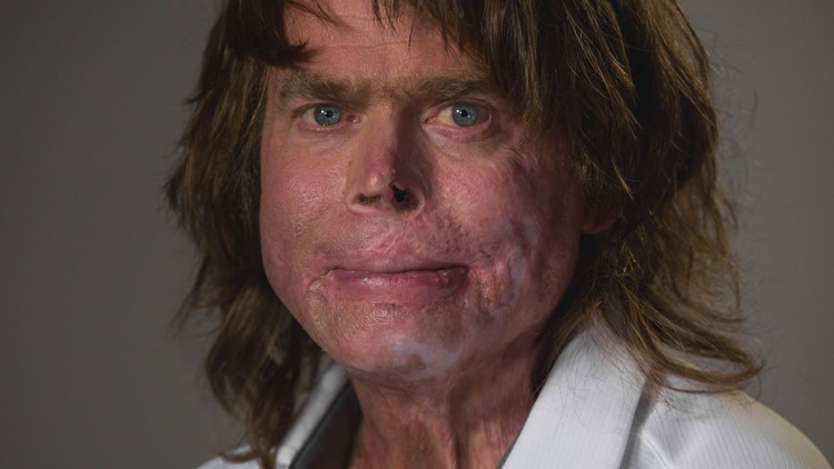 Man makes miraculous recovery after preventable inferno burns 90 percent of his body