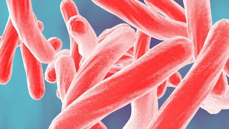 Students and staff may have been exposed to tuberculosis at Aurora middle school