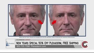 Plexaderm - January 21, 2020