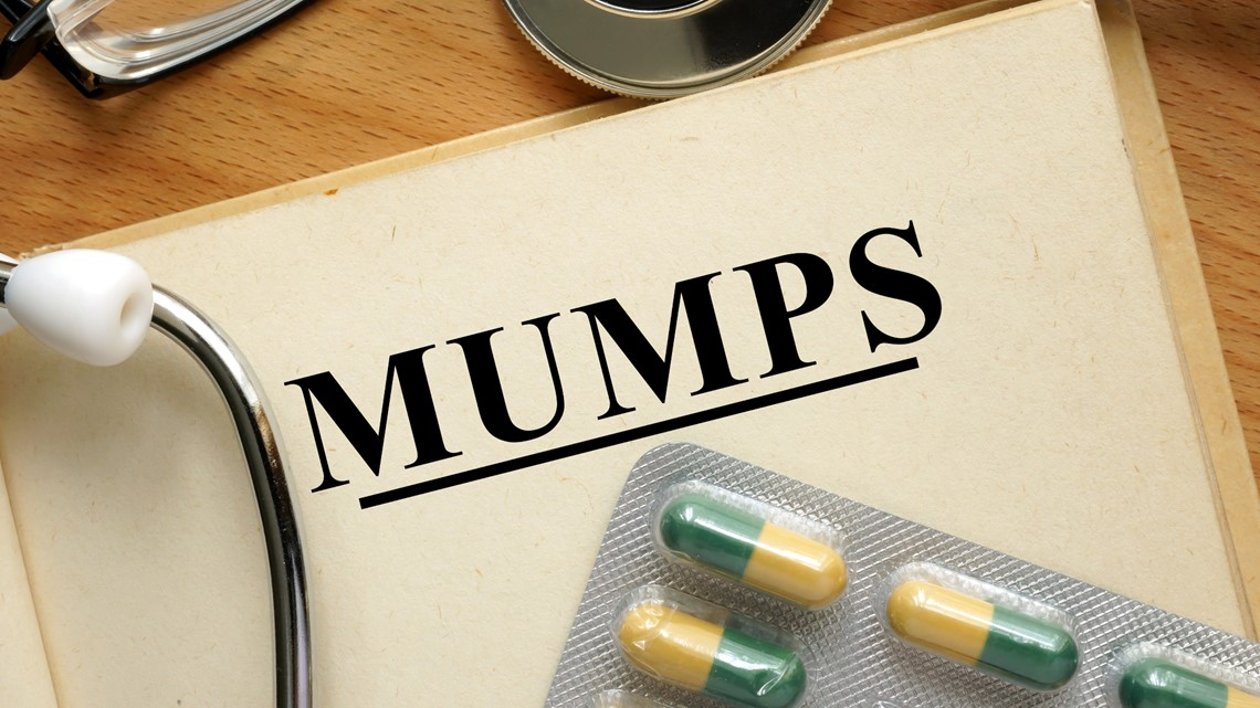 6 mumps cases reported in Summit County