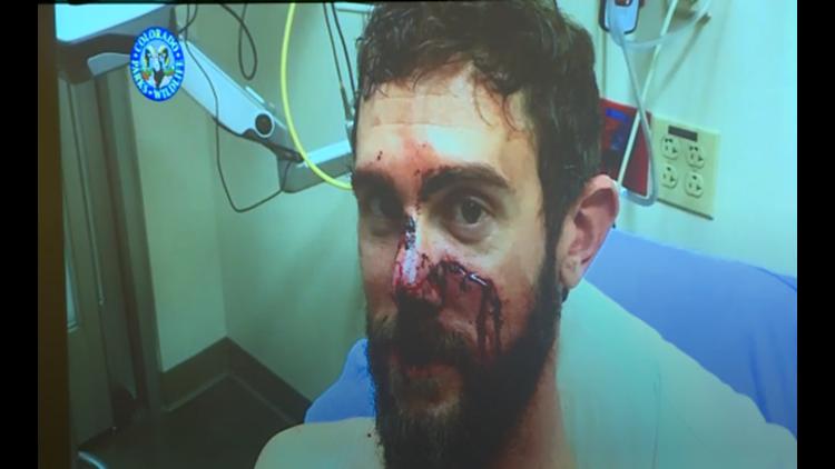 Travis Kauffman injured