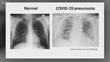 Progression of COVID-19 infection