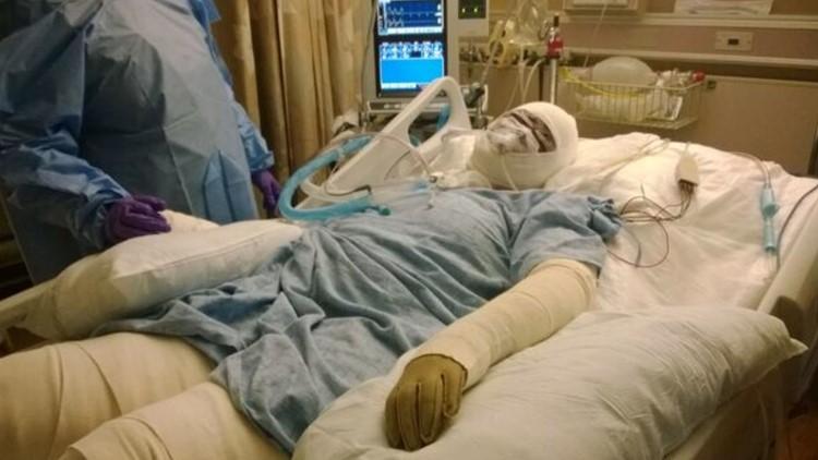 Woman's skin 'melts off' after medication error